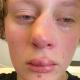 De mishandelde Amstelveense tiener